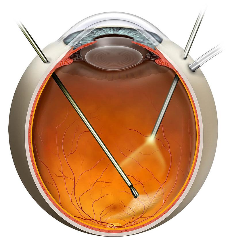 Vitrectomy illustration